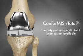 Conformis Custom 3D Total Knees: The Patient Specific Advantage