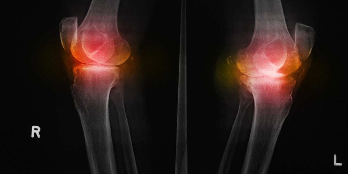 Ten Steps To Prepare For Joint Replacement Surgery