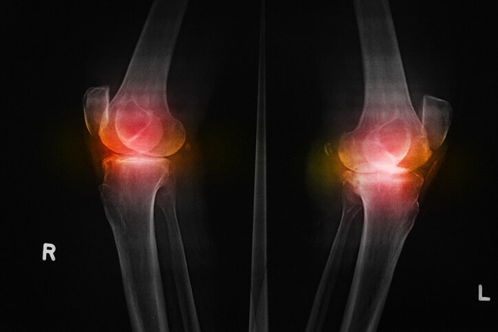 joint replacement preparation steps