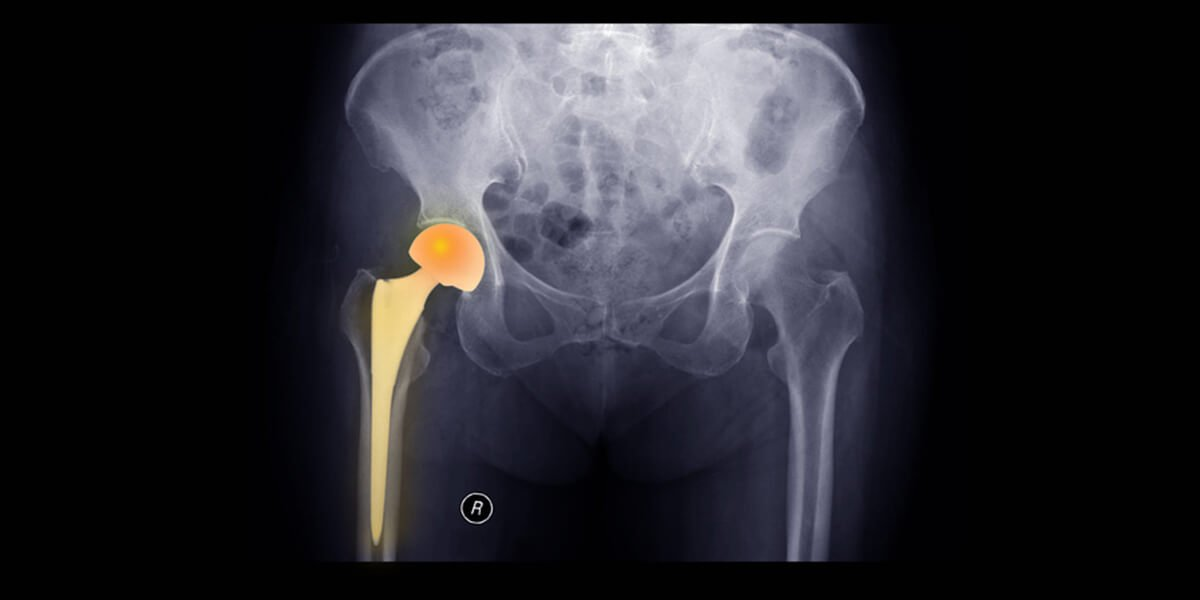 same day joint replacement surgery spinal anesthesia portsmouth nh
