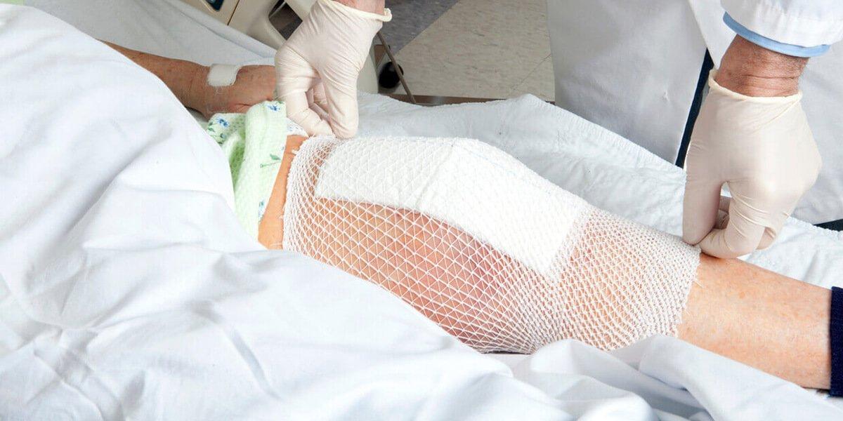 makoplasty total knee replacement