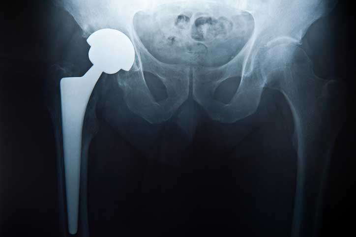 portsmouth nh superpath hip replacement