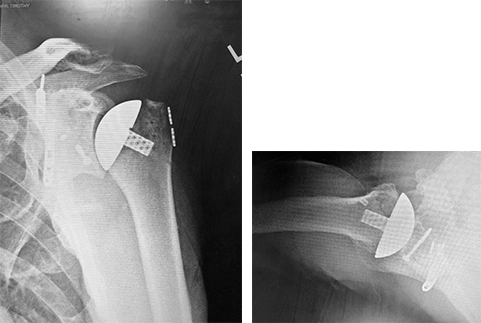 ream run shoulder replacement surgery portsmouth nh