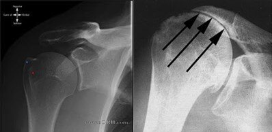 shoulder x-ray - reverse shoulder replacement surgery portsmouth nh