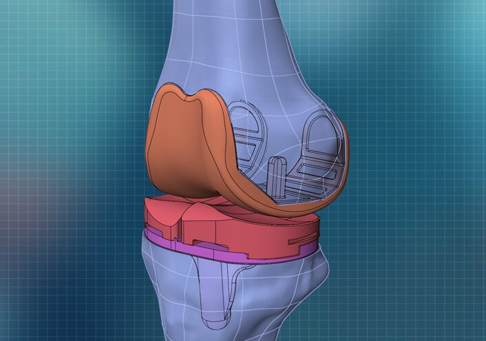 robotics and total knee replacement surgery analysis portsmouth nh