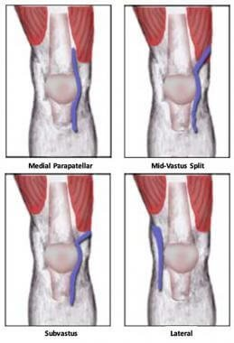 subvastus knee replacement approach
