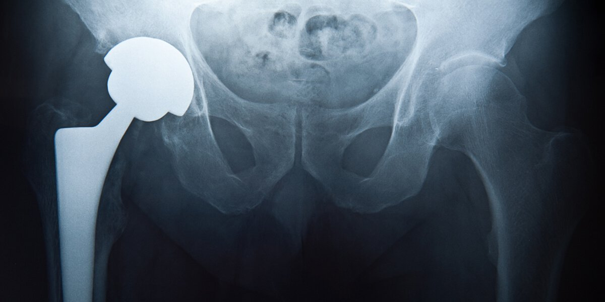 superpath hip replacement advantages portsmouth nh