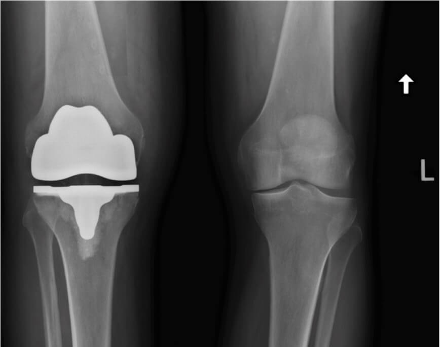 comformis knee replacement surgery 11 portsmouth nh