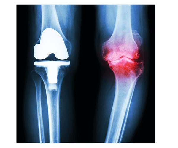 top knee replacement surgeons in seacoast new hampshire