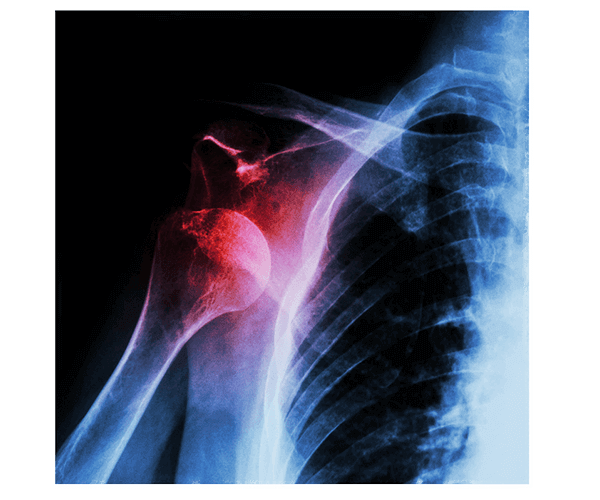 top shoulder replacement surgeons in seacoast new hampshire