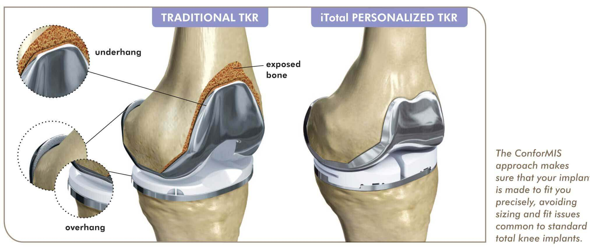 traditional vs conformis knee replacement doctors in seacoast new hampshire